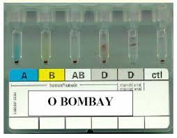 Análisis positivo Bombay