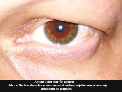 ojo de Corrado